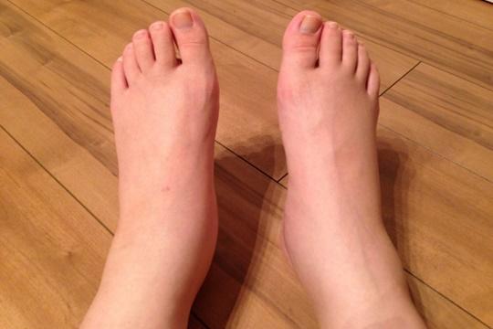 足首が太い原因は生まれつきではない!本当の原因とは!?